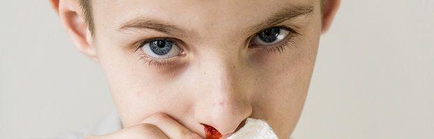 Sangue dal naso (epistassi): cause e rimedi